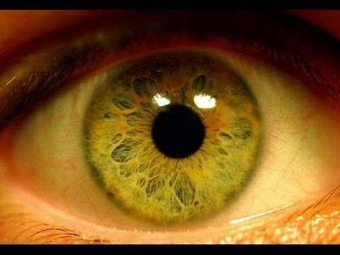 Плохое кровообращение головного мозга и зрение