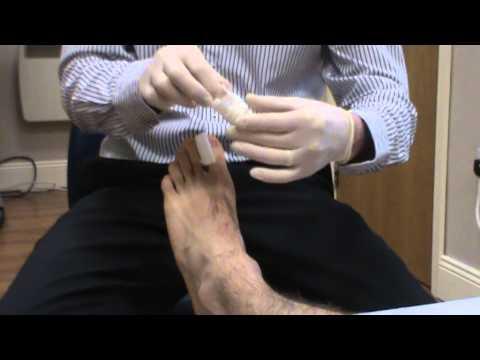 Senfpflaster Behandlung mit Osteochondrose