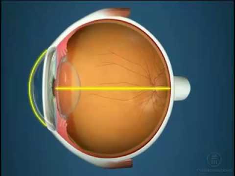 Как называется когда зрение на глазах разное