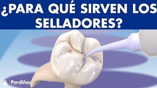 Selladores dentales - Sellado de fosas y fisuras para prevenir caries ©
