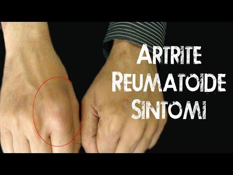 Descrizione di artrosi dellarticolazione della spalla x-ray