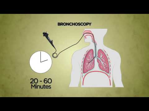 Hpv laryngeal cancer