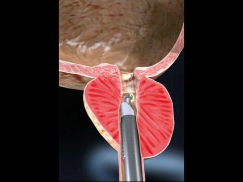 Wie zu heilen Prostatitis