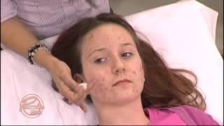 Praktična žena - Rešite se akni i bubuljica uz pomoć lakih trikova