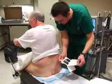 Trattamento della prostatite fisioterapia esso