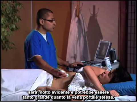I numeri superiore ed inferiore della pressione sanguigna