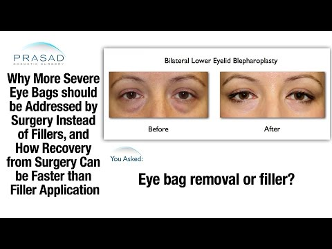 Laser eye surgery sa pagbubuntis sa retina