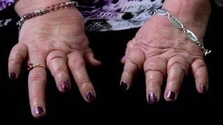 Symptoms and Treatment for Rheumatoid Arthritis patients.