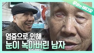 Elder Man's Eyes Melted Away When He Was 65 Years Old