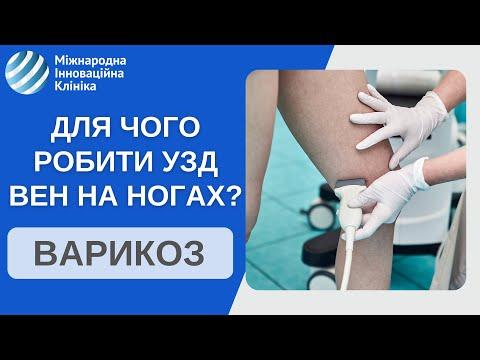 УЗИ вен нижних конечностей. Что самое важное в диагностике болезни вен на ногах?