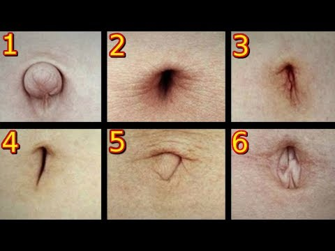 Îndepărtarea undelor radio a vindecării verucilor genitale