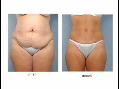 El cinturón para el adelgazamiento del vientre antes y después