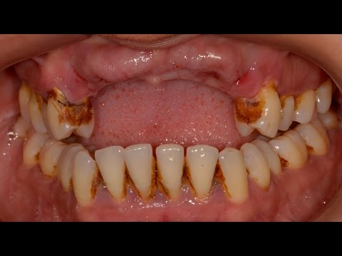 Video Tooth Loss due to Periodontal (Gum) Disease.