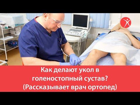 Как делают укол в голеностопный сустав? (Рассказывает врач ортопед)