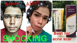 Glycolic Acid For 100% Pimple Acne Scar  | Glyco 6 For Acne Scar