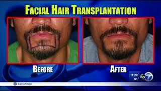 Facial Hair Transplants Give Men Perfect Beards