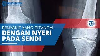 Rematik, Penyakit yang Ditandai dengan Nyeri Sendi yang Disebut Juga Rheumatoid Arthritis