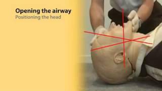 Basic Airway Management 1