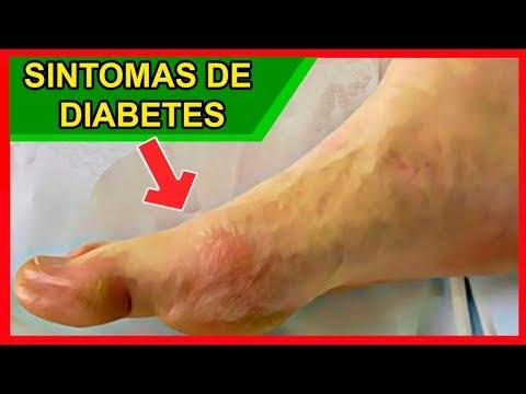 Livro sobre diabetes mellitus tipo 1