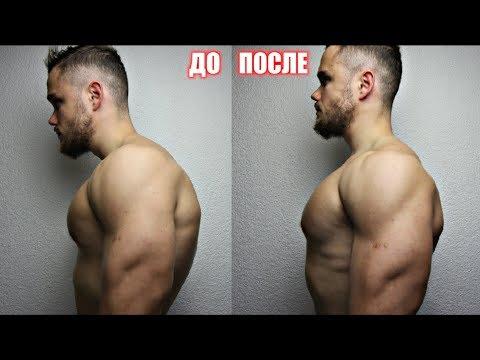 Искривления позвоночника комплекс упражнений