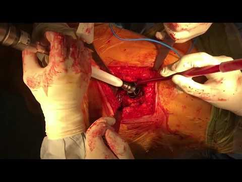 Inyección para el tratamiento de dolor de espalda