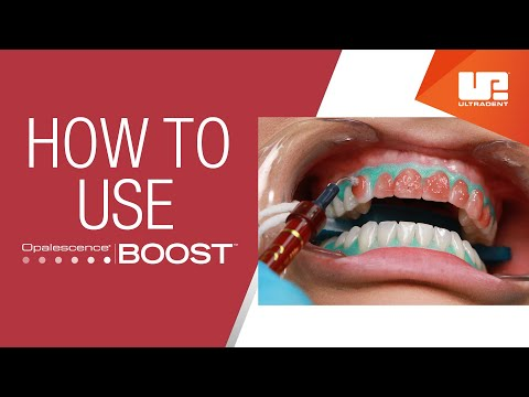 How to Use Opalescence™ Boost™ Professional Teeth Whitening | Step-by-Step Procedure