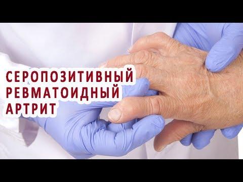 Что нужно знать о серопозитивном ревматоидном артрите