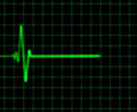 Farmacologie tratament criză hipertensivă