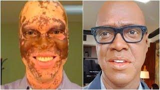 Мужчина КАЖДЫЙ день красил свою кожу, чтобы СПАСТИ карьеру