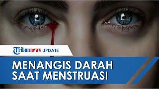 Perempuan 25 Tahun Alami Kelainan Keluarkan Air Mata Darah Selama Menstruasi, Dokter Buka Suara