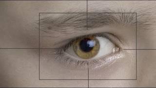 ¿Es recomendable la cirugía refractiva en los niños?