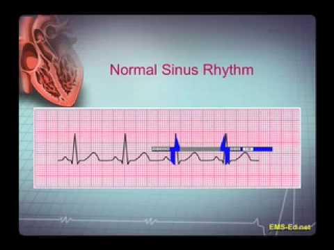 Djelotvorna sredstva za stupanj 2 hipertenzije
