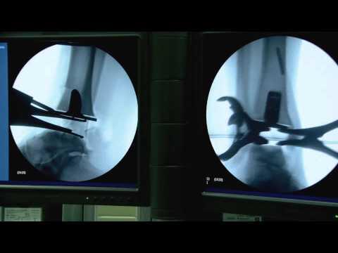 Gamba gonfia dopo lintervento chirurgico per la sostituzione dellanca
