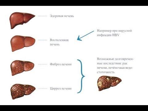 Трескунов лечение гепатита с