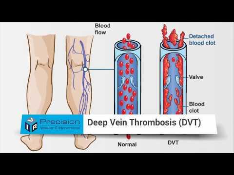 Costo di laser di asterischi vascolare
