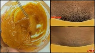IN 30 MINUTES REMOVE UNWANTED HAIR PERMANENTLY | PUBIC UNDERARM FACIAL HAIR |Khichi Beauty