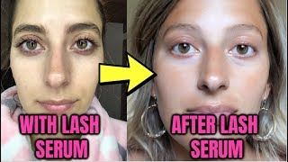 WHAT HAPPENS AFTER LASH SERUM? IM HERE TO TELL YOU! Before & After Results