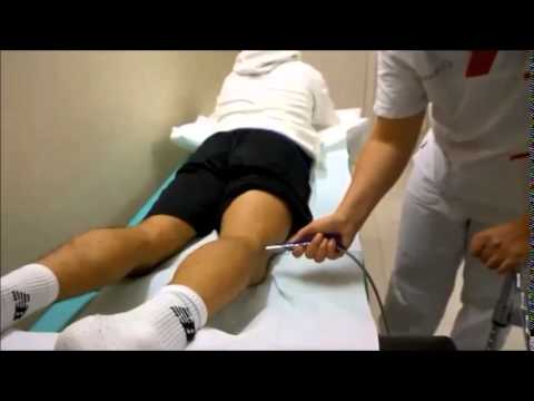 Prostatektomiya radicale e potenzialità