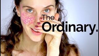 The Ordinary 3 Best Rosacea Products For Redness & Sensitive Skin Routines
