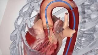 Factors Affecting Recovery From Heart Valve Surgery