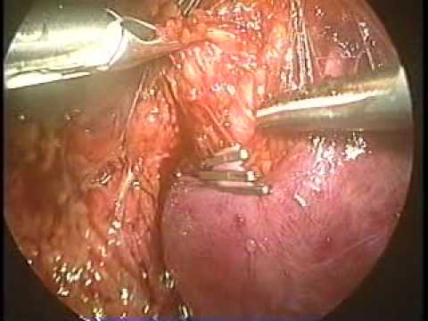 Trombosi di okklyuziruyushchy di unarteria femorale