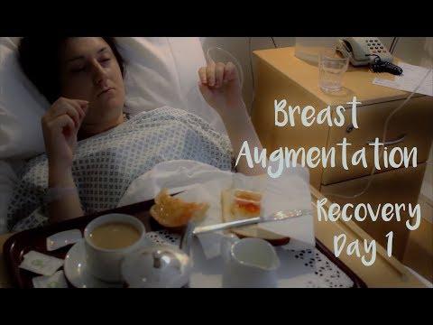 Como se siente implant en el pecho