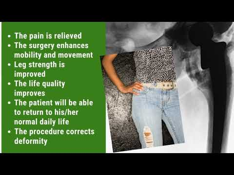 Effective-Package-for-Hip-Replacement-in-Chennai-India