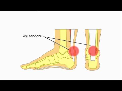 Aşil tendonu nedir?