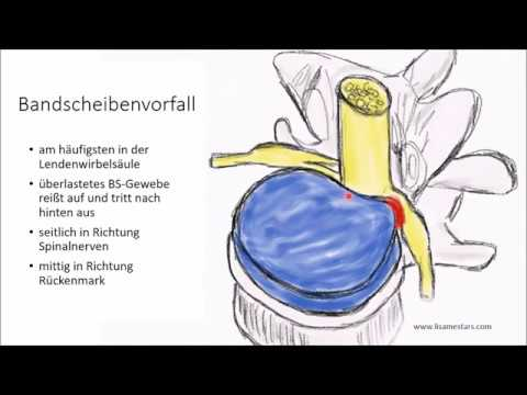 37 Wochen der unteren Rückenschmerzen, die tun