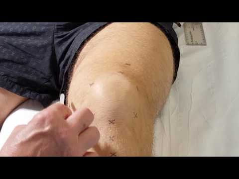 Lövési fájdalmak a vállízületben