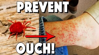 What Are Chiggers, How To Treat Bites, And How To Prevent!