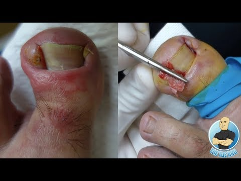 Homyopatya at toe fungus