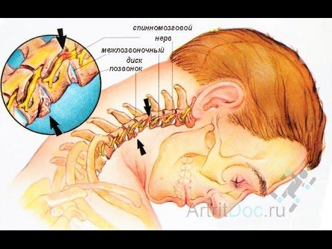 Ушиб растяжение голеностопного сустава мкб