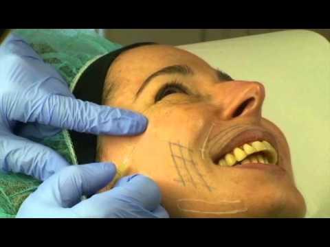 Hypostasis sotto un occhio a causa di ristagno venoso